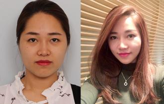 Thẩm mỹ gương mặt + thẩm mỹ mắt + thẩm mỹ mũi của Minhminh~